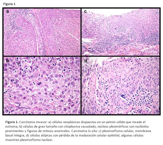 Papiloma neoplasia, Papiloma neoplasia