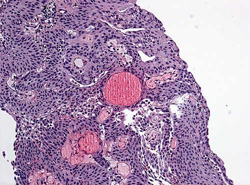 Cancer urina escura. Papiloma urotelial da bexiga